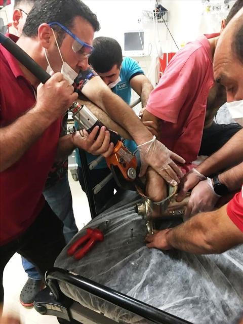 Eli kıyma makinesine sıkışan kişi yaralandı